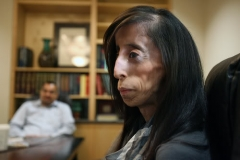 12.31.10 Alberto Martínez AMERICAN-STATESMAN -- Lizzie Velasquez tslks with a reporter at her doctor's office. Lizzie has a very rare genetic disorder, so rare in fact, that there is no diagnosis for it. While she is normal in most ways, Lizzie's disorder prevents her from gaining weight -- she has never weighed more than 64 pounds, she said. Only three people in the world are known to have the disorder.